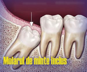 molar-de-minte-inclus1